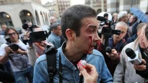 manifestante ferito brescia pdl centri sociali