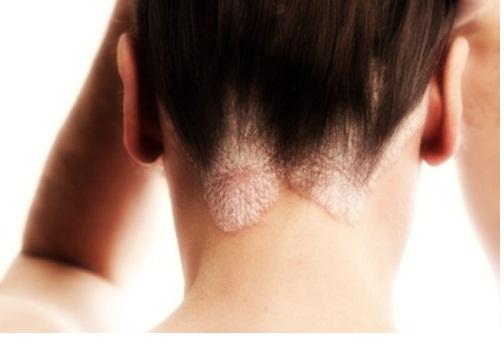 dermatite seborroica