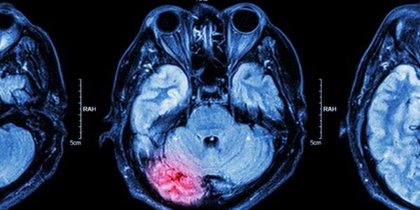 embolia cerebrale