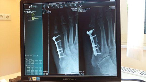 Legge 104 e assegno di invalidità con osteoporosi