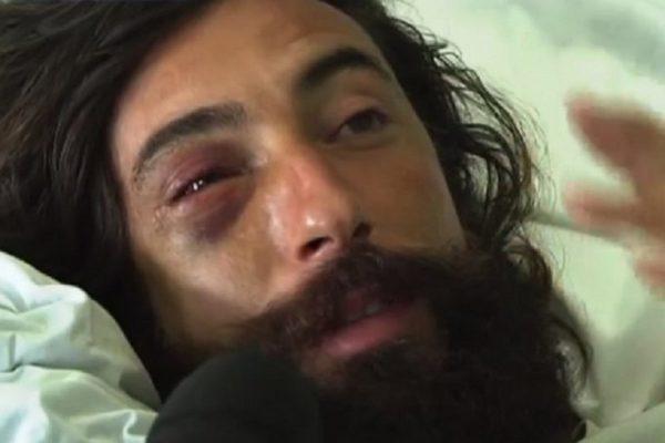 Vittorio Brumotti aggredito a Trani condizioni di salute